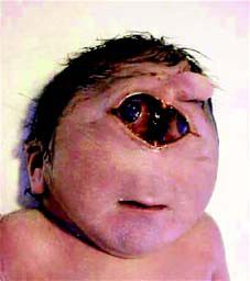 Image result for patau syndrome