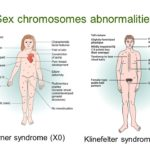 Klinefelter and Turner syndrome