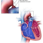 Aorta coarctation