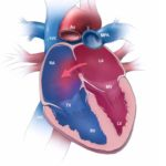 Atrial septal defect and ventricular