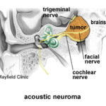 Acoustic neuroma nerve
